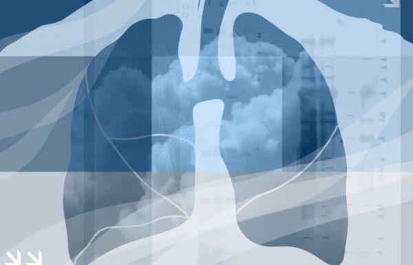 """פרופ' אלון הרשקו יו""""ר האיגוד לאלרגיה, בראיון לרגל יום האסתמה הבינ""""ל: הטיפולים הביולוגים מאפשרים התאמה אישית ושיפור משמעותי באיכות הטיפול בחולי האסתמה הקשים"""