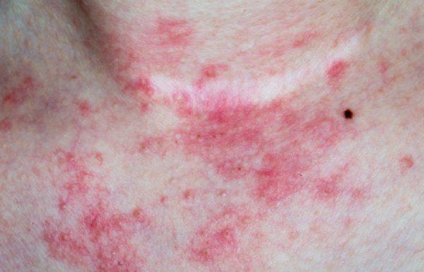 המלצות לקריאה   08/2020, בעריכת פרופ' אהרון קסל: גורמים נפוצים לדלקת עור במגע על-רקע אלרגי בילדים